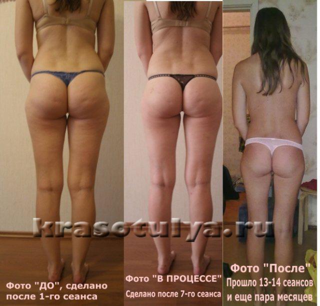http://www.krasotulya.ru/images/clients/886.jpg