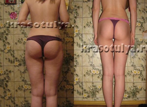 Смотреть Калланетика для похудения отзывы фото до и после ...: http://ib-conf.ru/foto/kallanetika-dlya-pohudeniya-otzivi-foto-do-i-posle.html