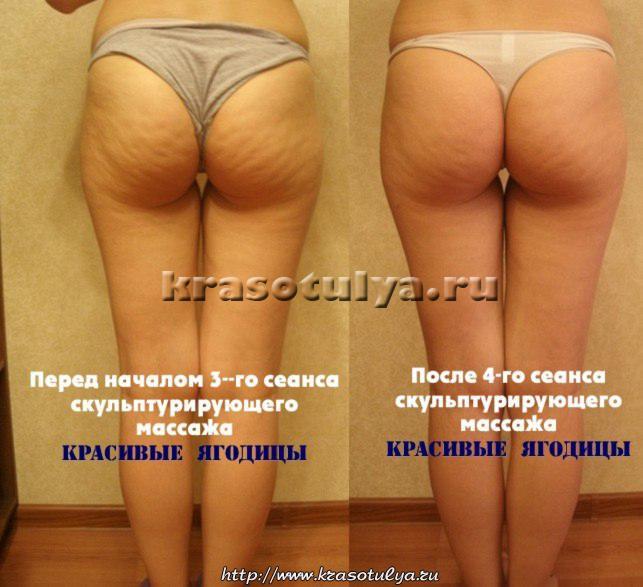 массаж бразильские ягодицы, бразильский массаж до и после, массаж бразильские ягодицы до и после